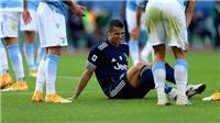 Bóng đá hôm nay 9/11: MU cần 4 Fernandes nữa để đua vô địch. Ronaldo chấn thương mắt cá