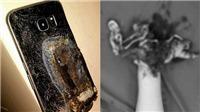 Điện thoại phát nổ trong lúc sạc pin khiến nam thanh niên dập nát toàn bộ bàn tay trái