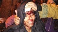 Ẩu đả tại Đại học JNU danh tiếng Ấn Độ, ít nhất 23 người bị thương