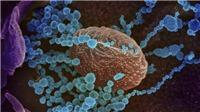 Các nhà khoa học Argentina giải mã thành công bộ gien của Virus SARS-COV-2