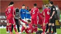 Liverpool: Trả giá vì sự tự tin của chính mình