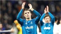 Những câu hỏi cho Serie A sắp trở lại