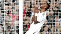 Real Madrid thiếu hiệu quả trên hàng công: Không! Chỉ là sự khắt khe của thần may mắn