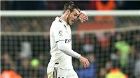 Real Madrid: Điều tồi tệ nhất đã xảy ra với Gareth Bale