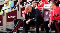 Mourinho đã thua trong cuộc chiến của mình