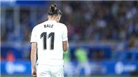 Gareth Bale: Sản phẩm từ sự nuông chiều của Perez