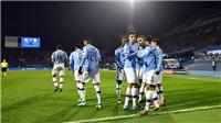 Trực tiếp bóng đá, Man City vs Arsenal: Thân Premier League, hồn Champions League