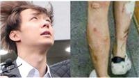 Rùng mình nhìn những vết loét, sưng rộp trên chân tay của Park Yoo Chun, hậu quả của nghiện ma túy đá
