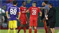 Đinh Hoàng Max ký hợp đồng với Topenland CLB Bình Định