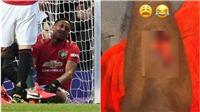 MU: Martial 'khoe' vết thương ghê rợn sau trận thắng Man City
