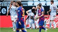 Barcelona hòa Celta Vigo: Suarez chỉ trích HLV, Setien đổ lỗi cho Griezmann