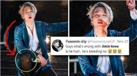 Dính chấn thương, Jimin BTS vẫn nén đau biểu diễn đến phút cuối cùng