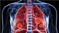 Tỷ lệ nữ giới châu Á không hút thuốc mắc ung thư phổi tăng