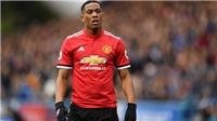 MU: Mourinho chỉ ra vấn đề của Martial ở Manchester United