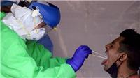 Dịch COVID-19: WHO quan ngại tình hình dịch bệnh tại Mexico