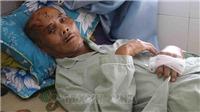 Phú Yên: Điều tra vụ cụ ông bị người thân hành hung phải nhập viện
