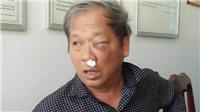 Kon Tum: Cơ quan chức năng vào cuộc điều tra vụ phóng viên VTV bị côn đồ tấn công