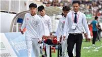 HAGL lo lắng vì chấn thương mắt của tiền vệ Triệu Việt Hưng
