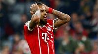 Vui cho Real, buồn cho Bayern: Vidal phải phẫu thuật