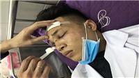 Công an Hải Dương triệu tập 7 đối tượng hành hung bác sĩ nghi chấn thương sọ não