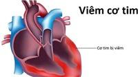VIDEO: Không có chuyện virus lạ 'viêm cơ tim' có thể lây lan