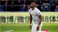 TIN HOT M.U 10/3: Pogba chưa chắc đá trận gặp Liverpool. Klopp sẵn sàng dựng xe bus