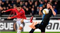 Ole Solskjaer đổ lỗi cho bóng và sân đấu khi MU bị cầm hòa 1-1 bởi Brugge