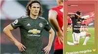 Tin bóng đá MU 30/11: MU lập kỷ lục Ngoại hạng Anh. Van de Beek chấn thương