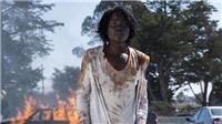 Lupita Nyong'o gây bão dư luận khi tạo ra giọng ma quỷ trong 'Us' từ bệnh tật của người khác