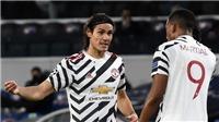 Tin bóng đá MU 6/12: Cavani và Martial chấn thương, MU tăng lương cho Fernandes