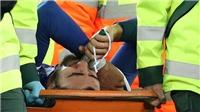 VIDEO: Andre Gomes phải phẫu thuật và những thống kê đen đủi của tiền vệ Everton