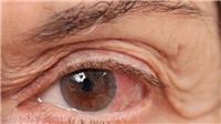 Bệnh glaucoma - cườm nước