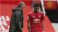 Tin bóng đá MU 17/10: Bruno Fernandes dọa ra đi. Solskjaer nhận lỗi vì phong độ tệ hại
