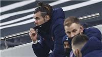 Mourinho tiết lộ sự thật sau quyết định loại Bale trận gặp Everton tại FA Cup