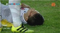 Cảm phục trước hình ảnh Quang Hải đổ máu vì chiến thắng U23 Việt Nam