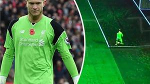 Sốc với đường chuyền tệ chưa từng thấy của thủ thành số 1 Liverpool
