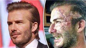 David Beckham khoe ảnh mặt sẹo xấu ĐIÊN ĐẢO như... Logan