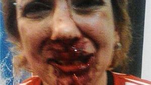 Fan nữ Argentina bị CĐV đối thủ đánh biến dạng mặt mày