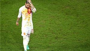 Kẻ chiến bại Tây Ban Nha: Màu đỏ và sự yếu đuối