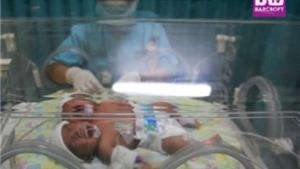 VIDEO: Rơi nước mắt trước bé sơ sinh hai đầu ở Indonesia