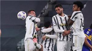 Ronaldo lại cúi đầu né cú sút phạt của cầu thủ Parma