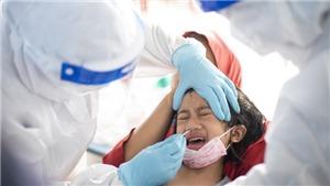 CDC Mỹ cảnh báo nguy cơ tự tử ở trẻ em gái vị thành niên trong đại dịch Covid-19