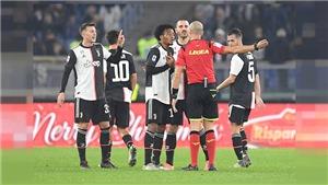 Cuộc đua Scudetto: Juventus vấp chân đáng tiếc