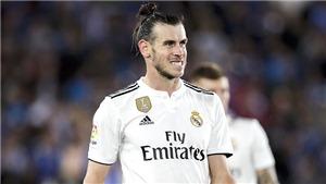 Giao tiếp kém là vấn đề của Bale