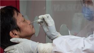 Dịch COVID-19 ngày 26/8: Thế giới có hơn 24,1 triệu ca bệnh và hơn 824.000 người đã tử vong