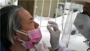 Dịch Covid-19 đến sáng 19/2: Thế giới có 110,81 triệu ca bệnh, 2,45 triệu người đã tử vong