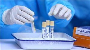 Việt Nam ghi nhận tổng cộng 1.515 bệnh nhân Covid-19