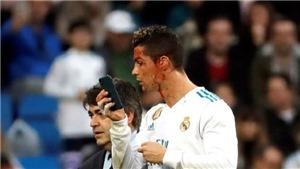 Máu chảy bê bết, Ronaldo vẫn thản nhiên dùng điện thoại để... soi gương