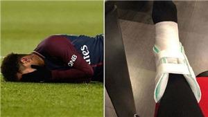 CHÍNH THỨC: Neymar về Brazil phẫu thuật, chắc chắn nghỉ trận gặp Real Madrid