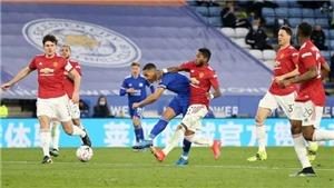 Leicester đã phơi bày sai lầm chuyển nhượng của MU